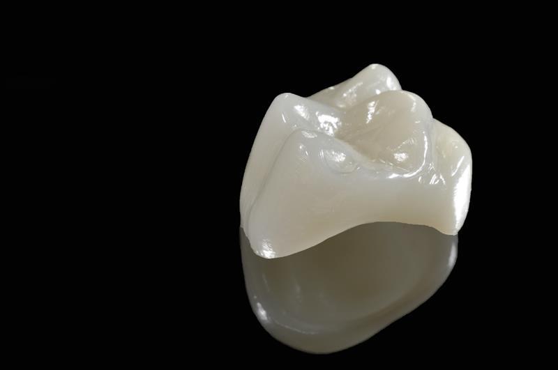 Porcelain Crowns  Keizer, OR