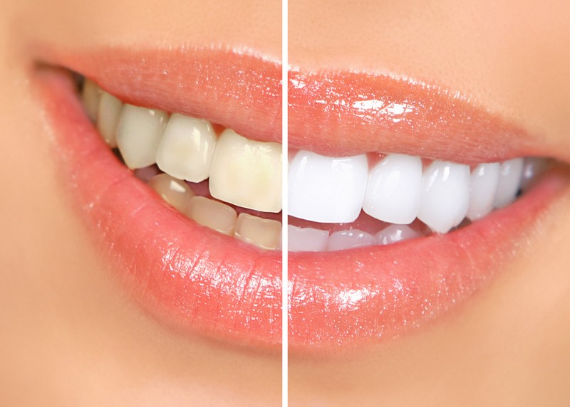 Teeth Whitening  Keizer, OR